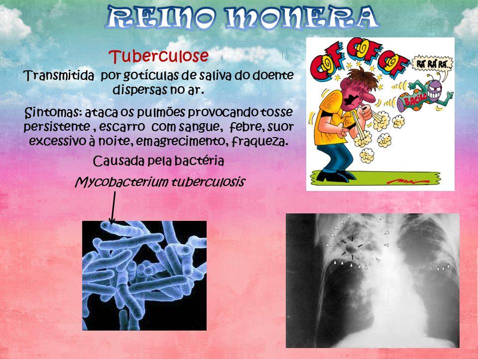 Tuberculose Transmitida por gotículas de saliva do doente dispersas no ar. Sintomas: ataca os pulmões provocando tosse persistente, escarro com sangue