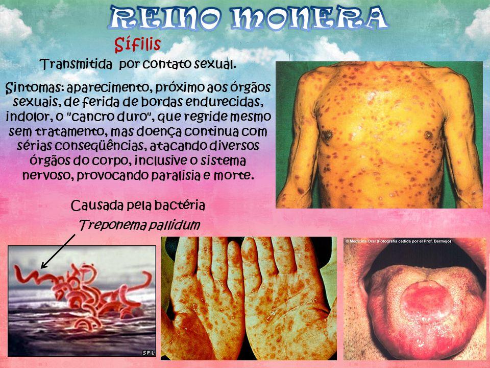 Sífilis Transmitida por contato sexual. Sintomas: aparecimento, próximo aos órgãos sexuais, de ferida de bordas endurecidas, indolor, o