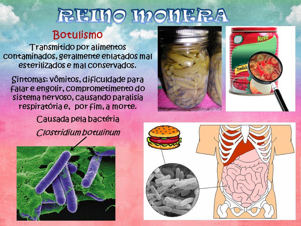 Botulismo Transmitido por alimentos contaminados, geralmente enlatados mal esterilizados e mal conservados. Sintomas: vômitos, dificuldade para falar