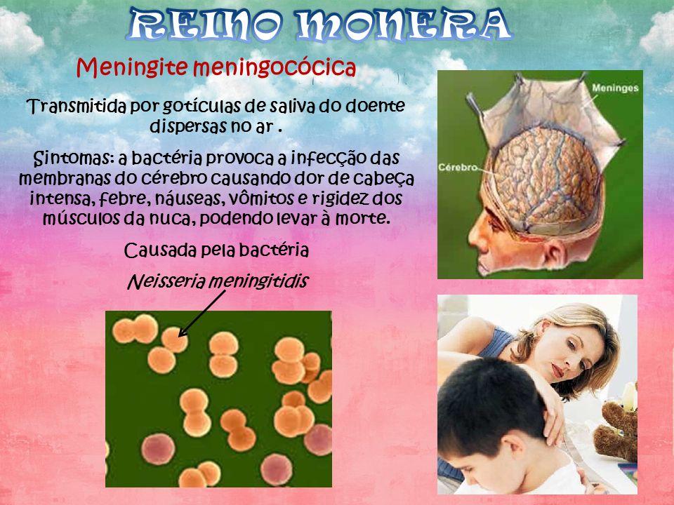 Meningite meningocócica Transmitida por gotículas de saliva do doente dispersas no ar. Sintomas: a bactéria provoca a infecção das membranas do cérebr