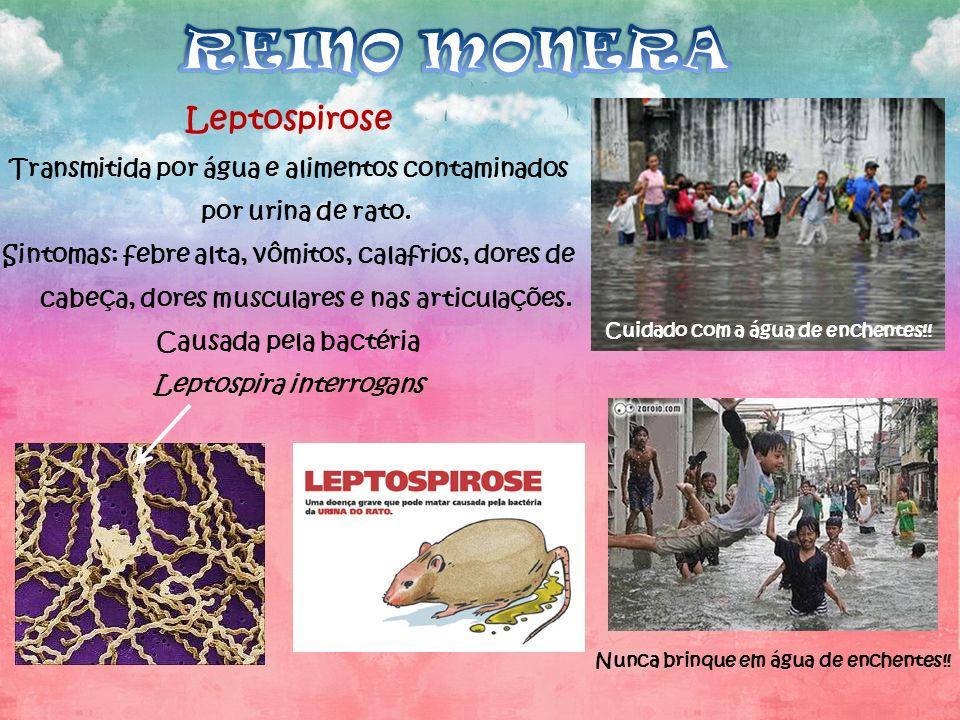 Leptospirose Transmitida por água e alimentos contaminados por urina de rato. Sintomas: febre alta, vômitos, calafrios, dores de cabeça, dores muscula