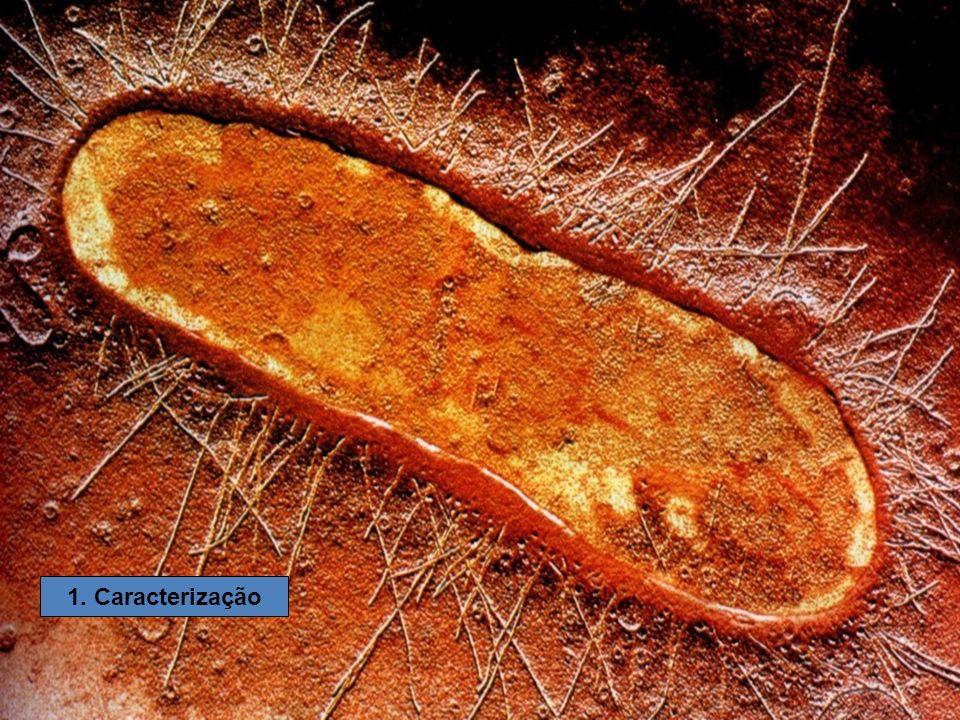 Tipo de nutriçãoFonte de energia Fonte de carbono Exemplos FotoautotróficaLuz Gás carbônico (CO 2 ) Bactérias fotossintetizantes (sulfobactérias verdes, sulfobactérias púrpuras, cianobactérias, proclorófitas) FotoheterotróficaLuz Compostos orgânicos Bactérias não-sulforosas púrpuras e bactérias não-sulforosas verdes Quimioautotrófica Em geral elétrons energéticos de compostos inorgânicos Gás carbônico (CO 2 ) Bactérias do enxofre, bactérias do ferro, bactérias nitrificantes, bactérias do hidrogênio Quimioheterotrófica Em geral elétrons energéticos de compostos orgânicos Compostos orgânicos Maioria das espécies de bactéria (saprofágicas ou parasitas)