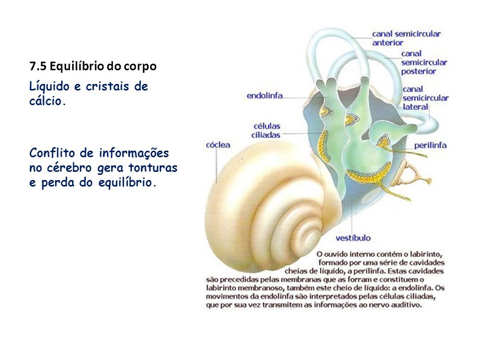 7.5 Equilíbrio do corpo Líquido e cristais de cálcio. Conflito de informações no cérebro gera tonturas e perda do equilíbrio.
