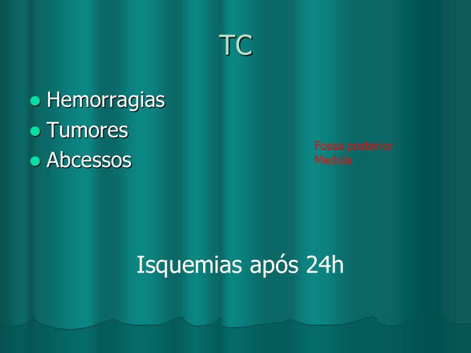 TC Hemorragias Hemorragias Tumores Tumores Abcessos Abcessos Fossa posterior Medula Isquemias após 24h