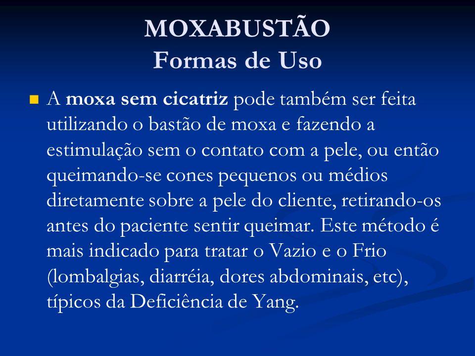 MOXABUSTÃO Formas de Uso A moxa sem cicatriz pode também ser feita utilizando o bastão de moxa e fazendo a estimulação sem o contato com a pele, ou en