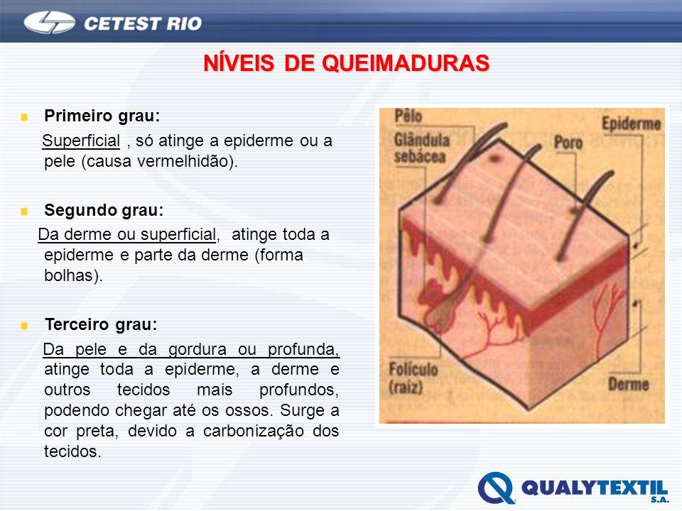 NÍVEIS DE QUEIMADURAS Primeiro grau: Superficial, só atinge a epiderme ou a pele (causa vermelhidão). Segundo grau: Da derme ou superficial, atinge to