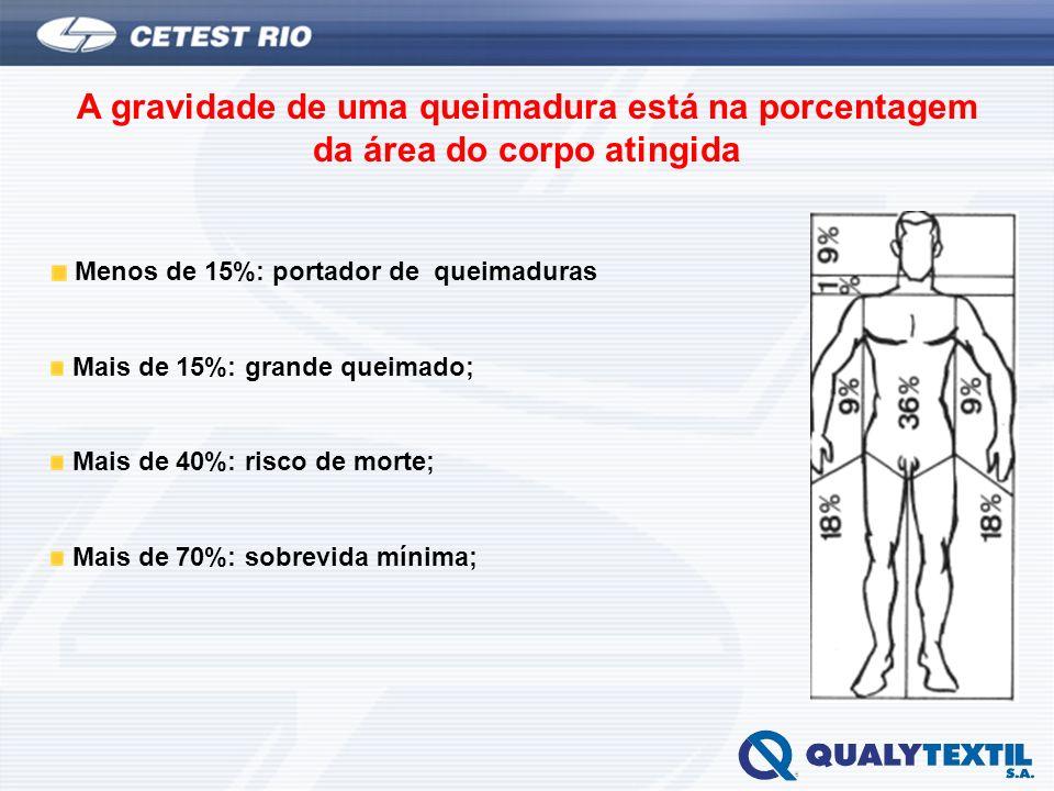 A gravidade de uma queimadura está na porcentagem da área do corpo atingida Menos de 15%: portador de queimaduras Mais de 15%: grande queimado; Mais d