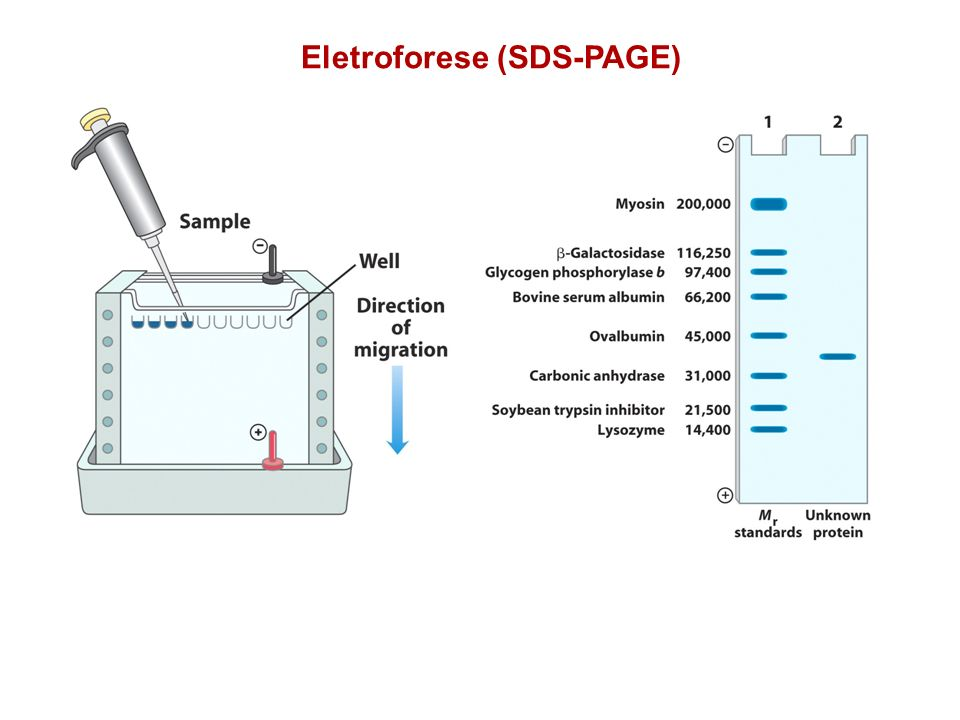 Eletroforese (SDS-PAGE)