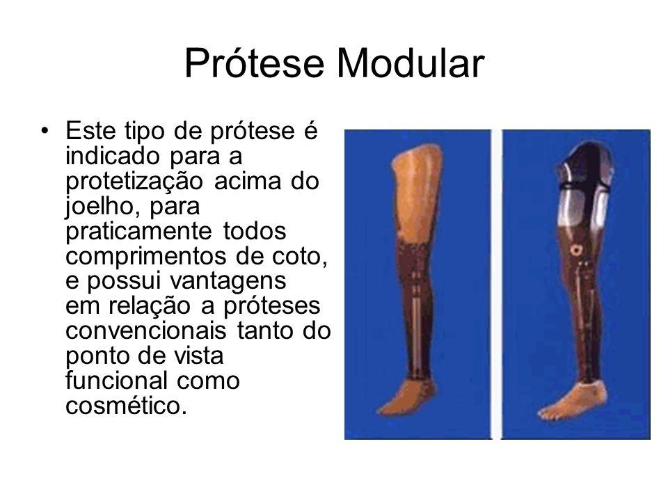 Prótese Modular Este tipo de prótese é indicado para a protetização acima do joelho, para praticamente todos comprimentos de coto, e possui vantagens