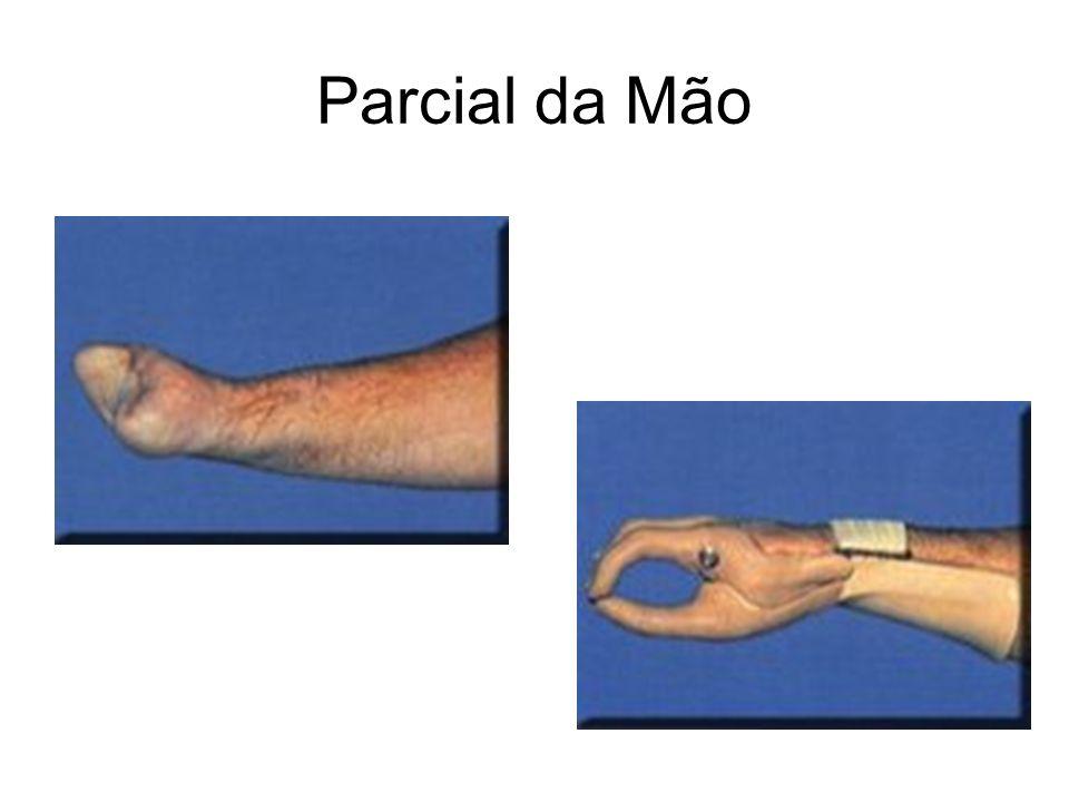 Parcial da Mão