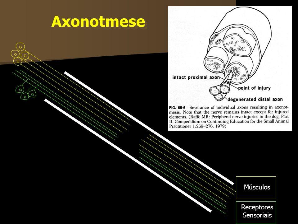 Músculos Receptores Sensoriais Axonotmese
