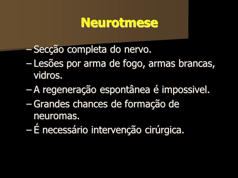 Neurotmese –Secção completa do nervo. –Lesões por arma de fogo, armas brancas, vidros. –A regeneração espontânea é impossivel. –Grandes chances de for
