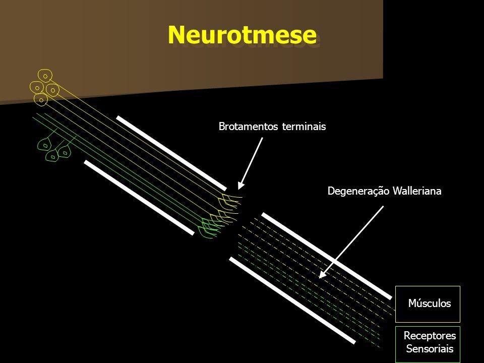 Músculos Receptores Sensoriais Brotamentos terminais Degeneração Walleriana Neurotmese