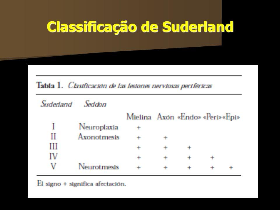 Classificação de Suderland