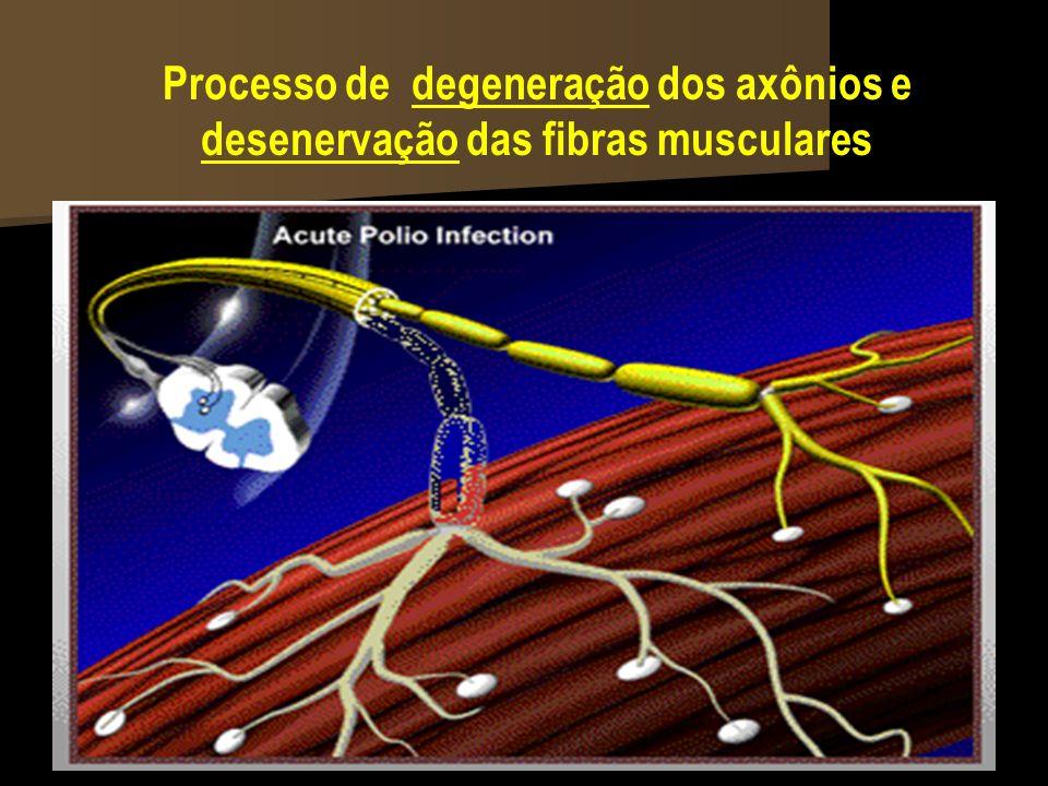 Processo de degeneração dos axônios e desenervação das fibras musculares