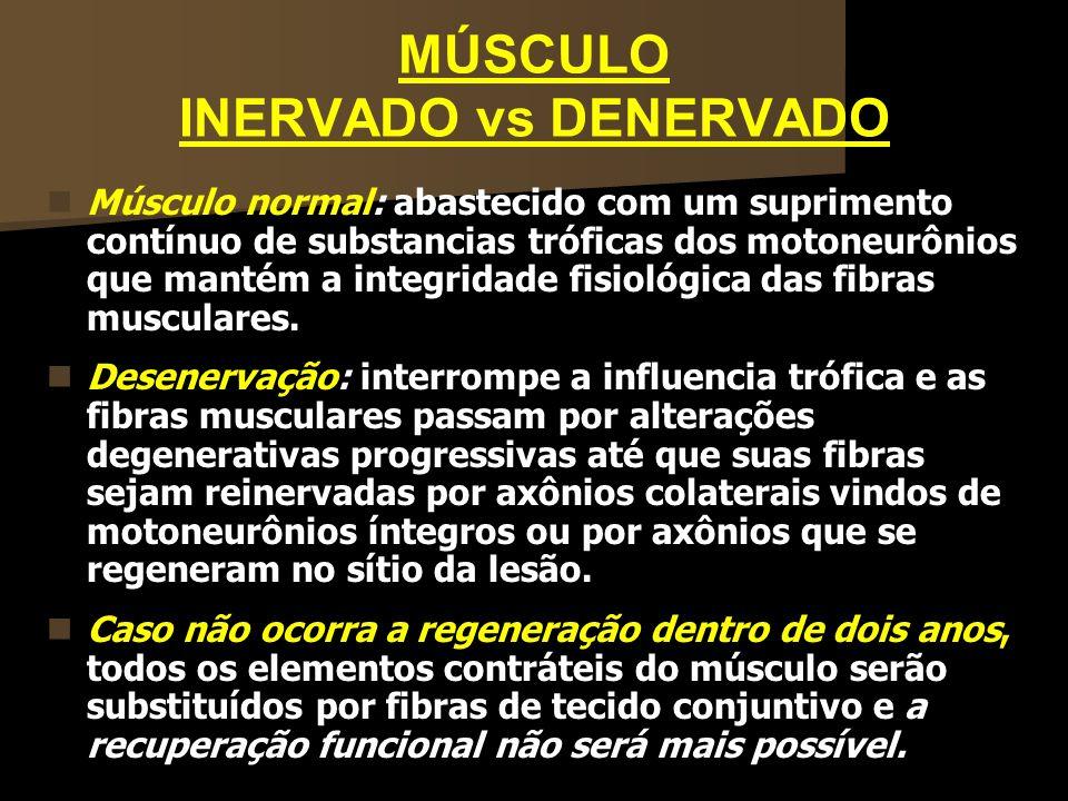 MÚSCULO INERVADO vs DENERVADO Músculo normal: abastecido com um suprimento contínuo de substancias tróficas dos motoneurônios que mantém a integridade