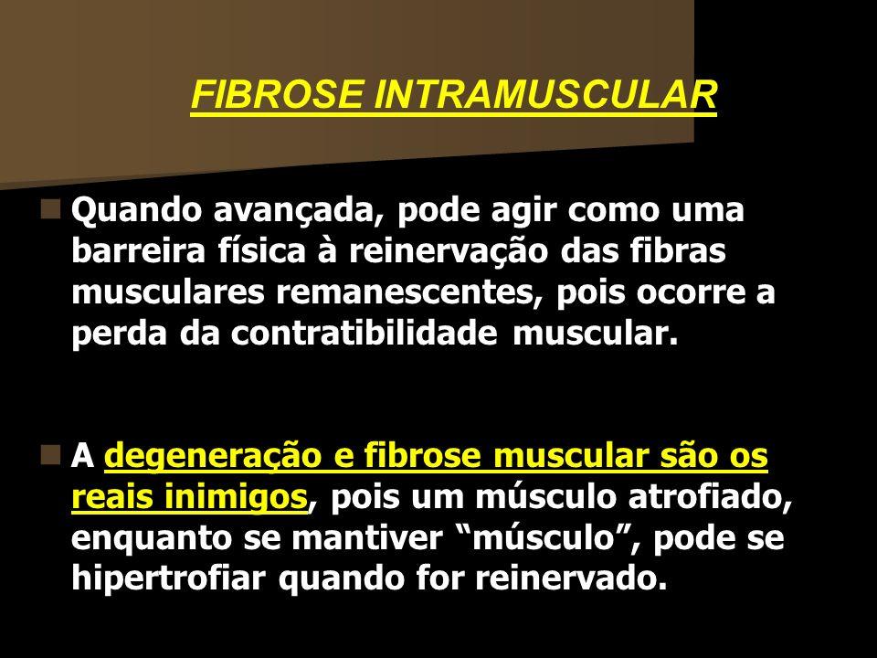 FIBROSE INTRAMUSCULAR Quando avançada, pode agir como uma barreira física à reinervação das fibras musculares remanescentes, pois ocorre a perda da co