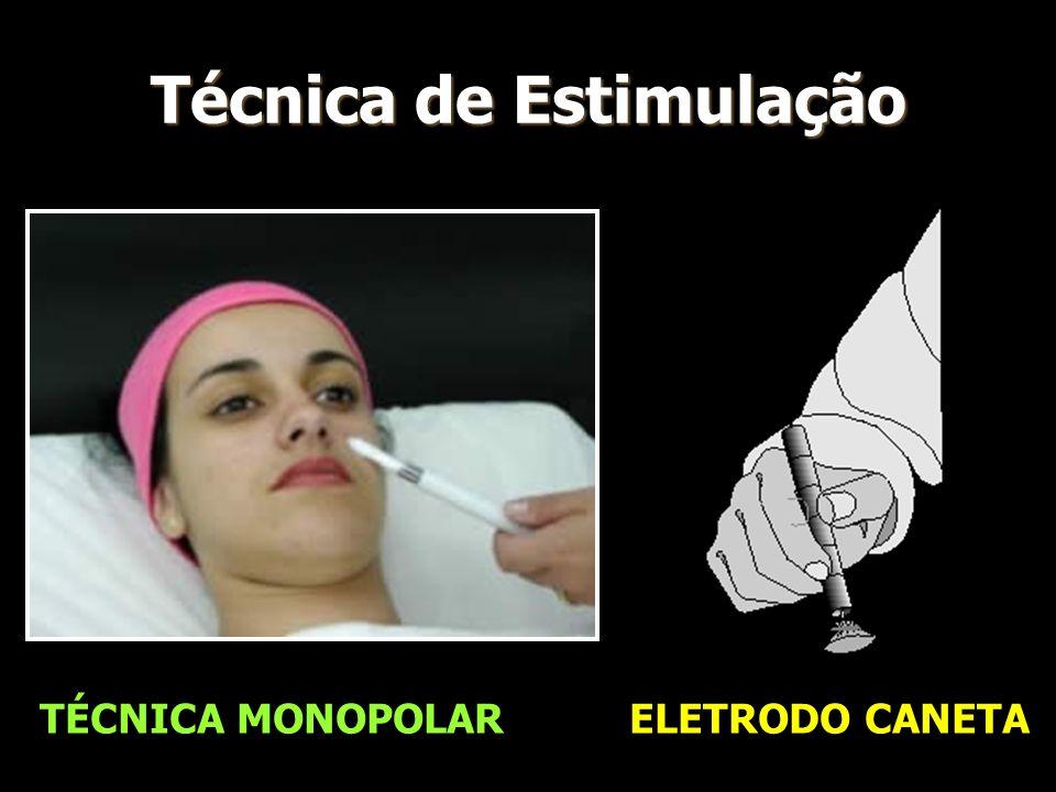 Técnica de Estimulação TÉCNICA MONOPOLAR ELETRODO CANETA