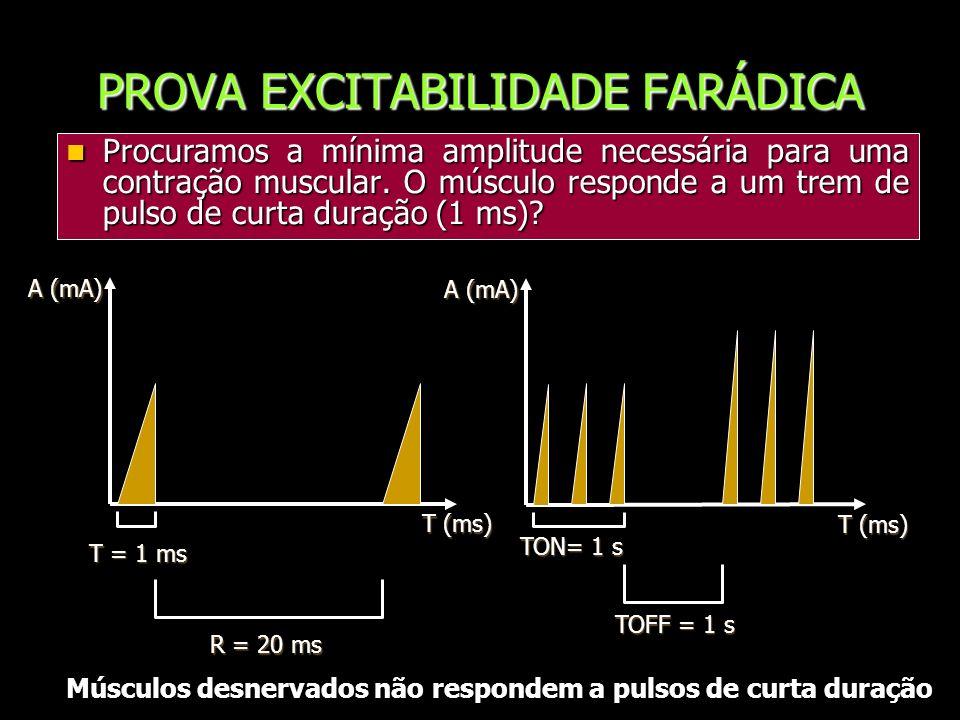 PROVA EXCITABILIDADE FARÁDICA Procuramos a mínima amplitude necessária para uma contração muscular. O músculo responde a um trem de pulso de curta dur