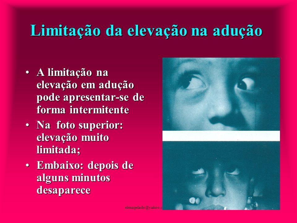 elenagelado@yahoo.com.br Limitação da elevação na adução A limitação na elevação em adução pode apresentar-se de forma intermitenteA limitação na elev