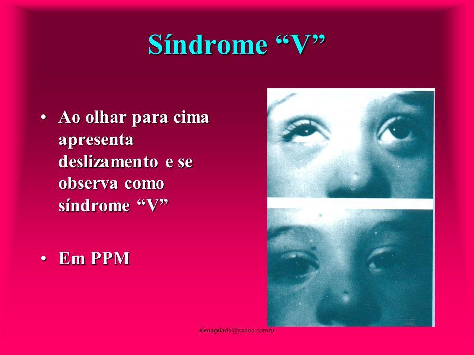 elenagelado@yahoo.com.br Síndrome V Ao olhar para cima apresenta deslizamento e se observa como síndrome VAo olhar para cima apresenta deslizamento e