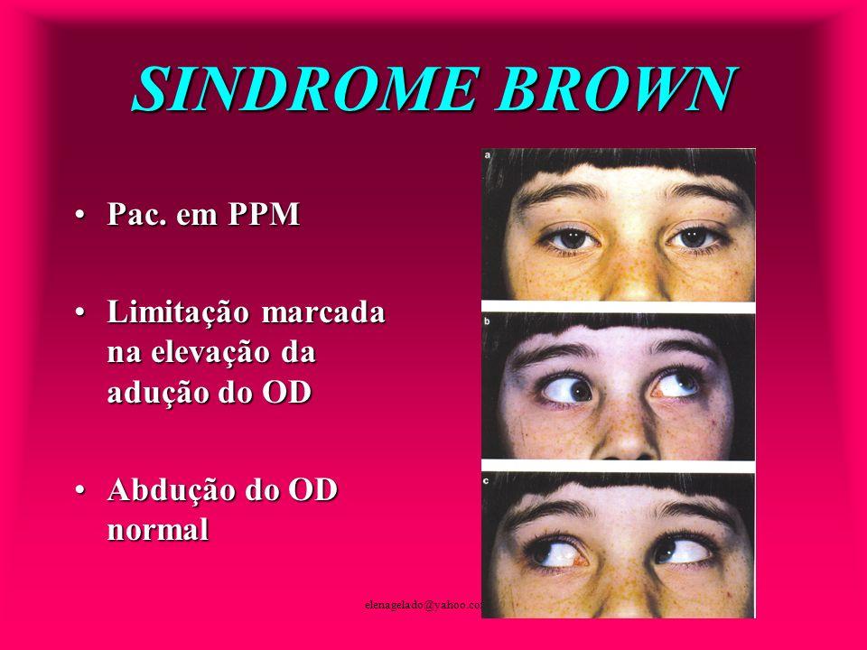elenagelado@yahoo.com.br SINDROME BROWN Pac. em PPMPac. em PPM Limitação marcada na elevação da adução do ODLimitação marcada na elevação da adução do