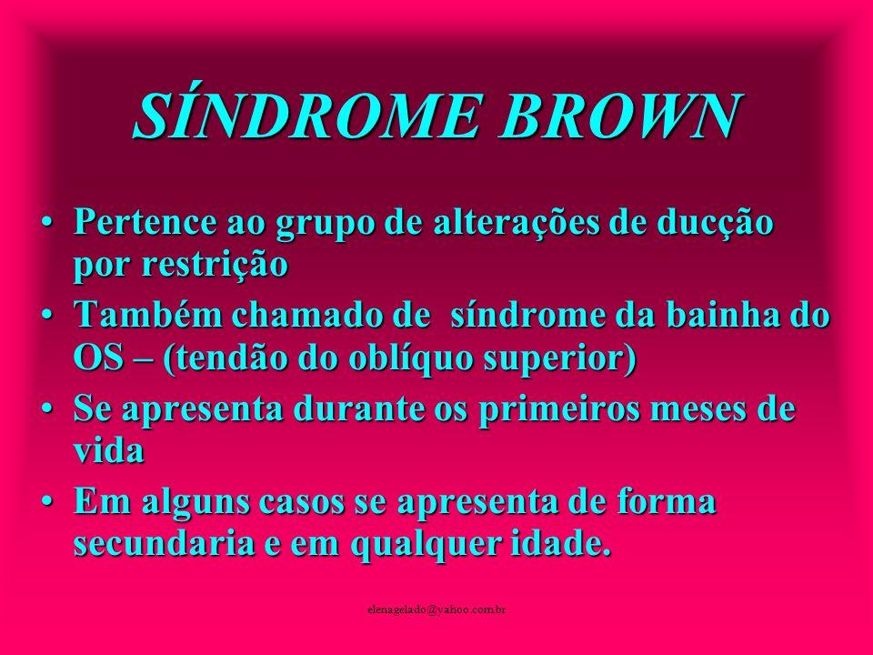 elenagelado@yahoo.com.br SÍNDROME BROWN Pertence ao grupo de alterações de ducção por restriçãoPertence ao grupo de alterações de ducção por restrição