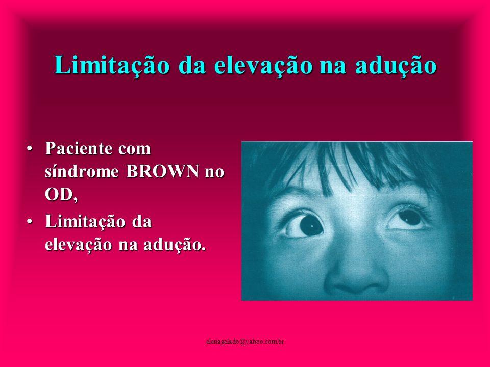 elenagelado@yahoo.com.br Limitação da elevação na adução Paciente com síndrome BROWN no OD,Paciente com síndrome BROWN no OD, Limitação da elevação na