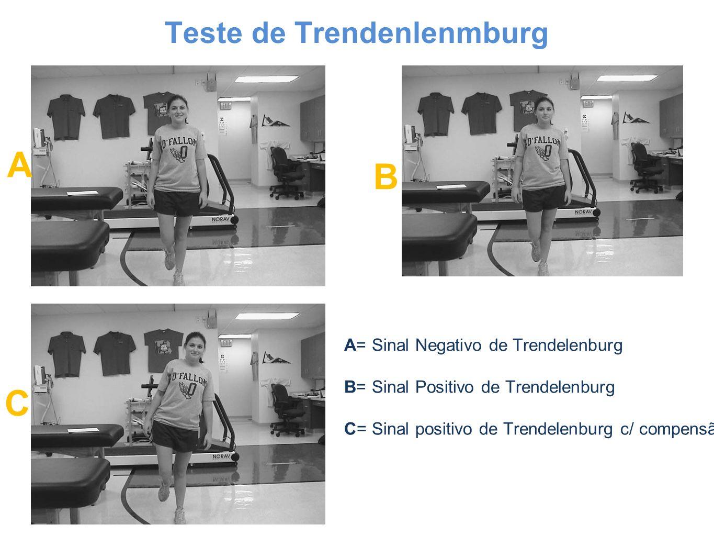 Teste de Trendenlenmburg A B C A= Sinal Negativo de Trendelenburg B= Sinal Positivo de Trendelenburg C= Sinal positivo de Trendelenburg c/ compensão.