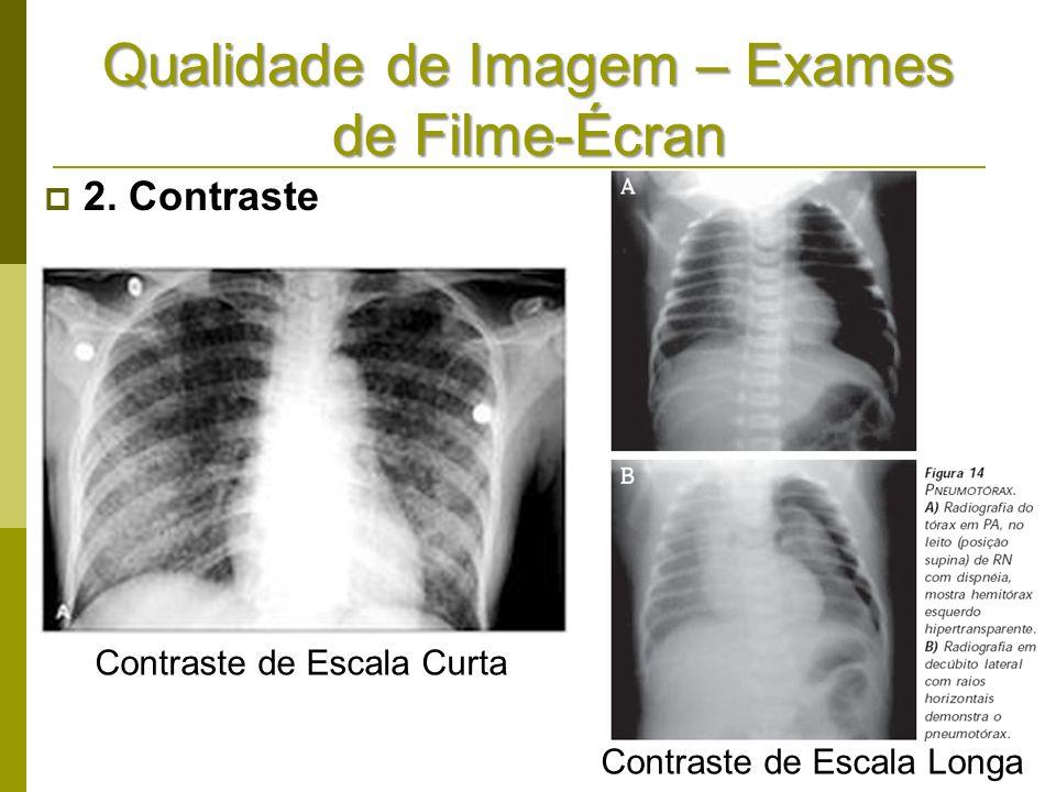 Qualidade de Imagem – Exames de Filme-Écran 2. Contraste Contraste de Escala Curta Contraste de Escala Longa