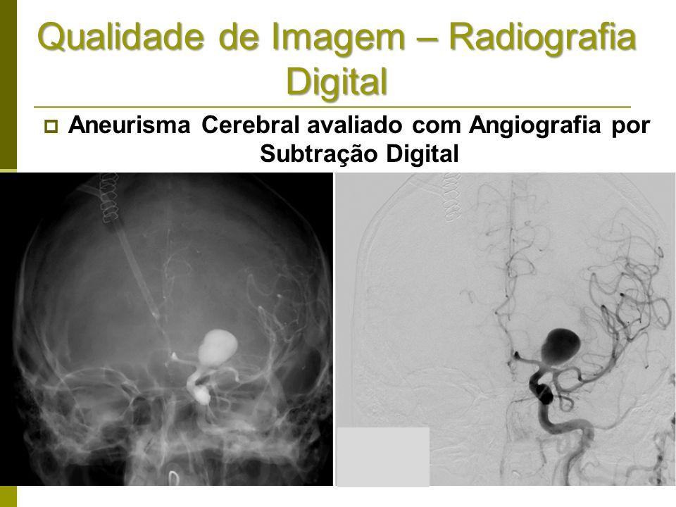 Qualidade de Imagem – Radiografia Digital Aneurisma Cerebral avaliado com Angiografia por Subtração Digital
