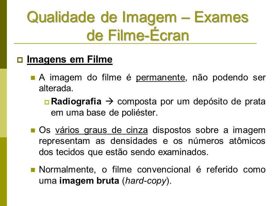 Qualidade de Imagem – Exames de Filme-Écran Imagens em Filme A imagem do filme é permanente, não podendo ser alterada. Radiografia composta por um dep