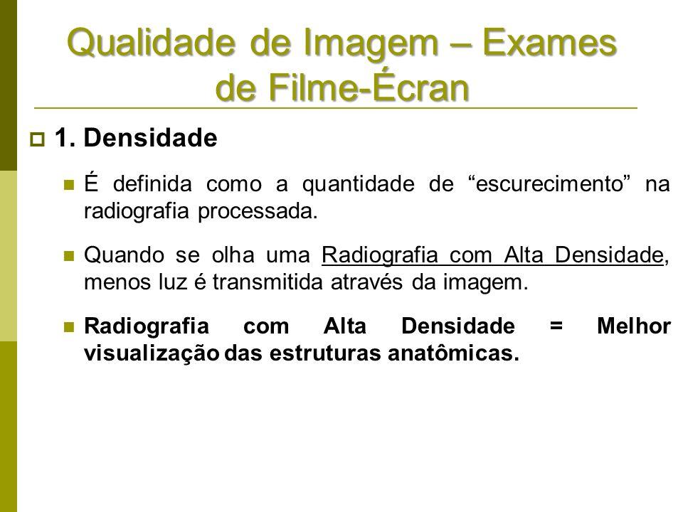 Qualidade de Imagem – Exames de Filme-Écran 1. Densidade É definida como a quantidade de escurecimento na radiografia processada. Quando se olha uma R