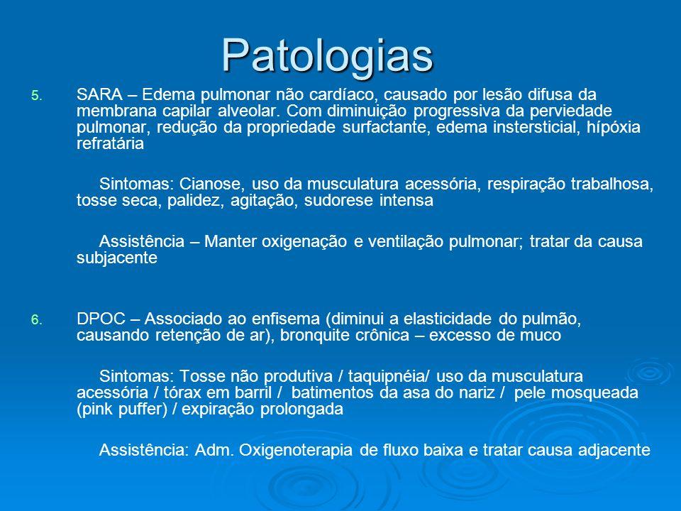 Patologias 5. 5. SARA – Edema pulmonar não cardíaco, causado por lesão difusa da membrana capilar alveolar. Com diminuição progressiva da perviedade p