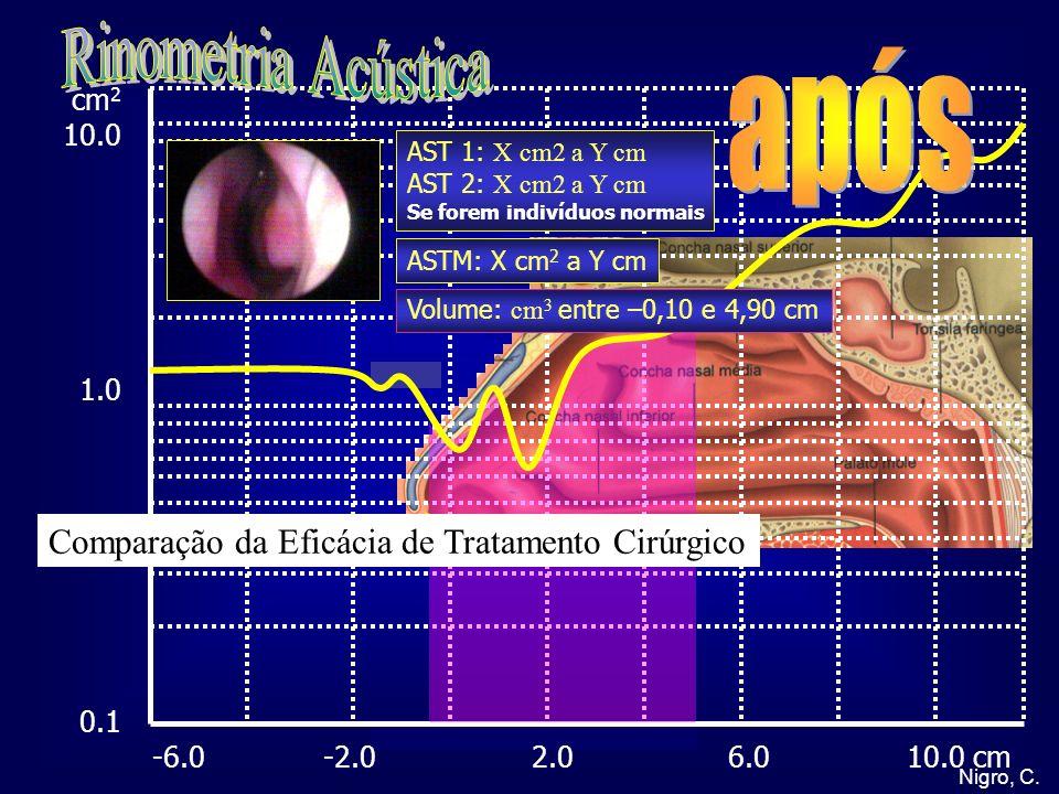Nigro, C. cm 2 10.0 1.0 0.5 0.1 -6.0 -2.0 2.0 6.0 10.0 cm AST 1: X cm2 a Y cm AST 2: X cm2 a Y cm Se forem indivíduos normais ASTM: X cm 2 a Y cm Volu