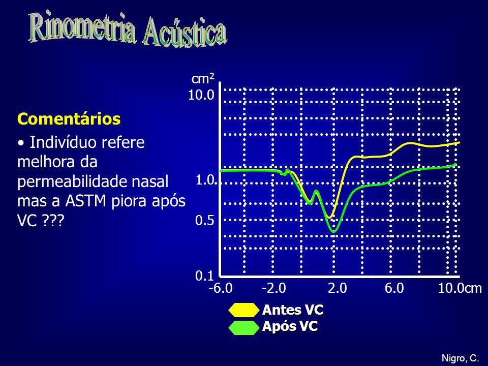 Nigro, C. -6.0 -2.0 2.0 6.0 10.0cm cm 2 10.0 1.0 0.5 0.1 Antes VC Após VC Comentários Indivíduo refere melhora da permeabilidade nasal mas a ASTM pior