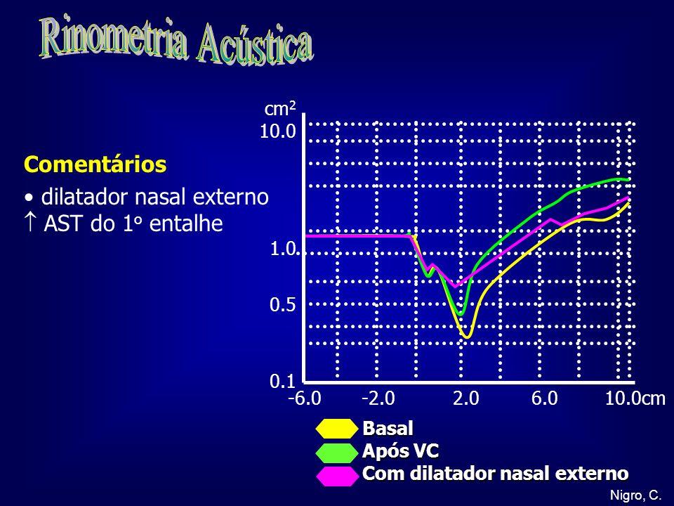 Nigro, C. -6.0 -2.0 2.0 6.0 10.0cm cm 2 10.0 1.0 0.5 0.1 Basal Após VC Com dilatador nasal externo Comentários dilatador nasal externo AST do 1 o enta
