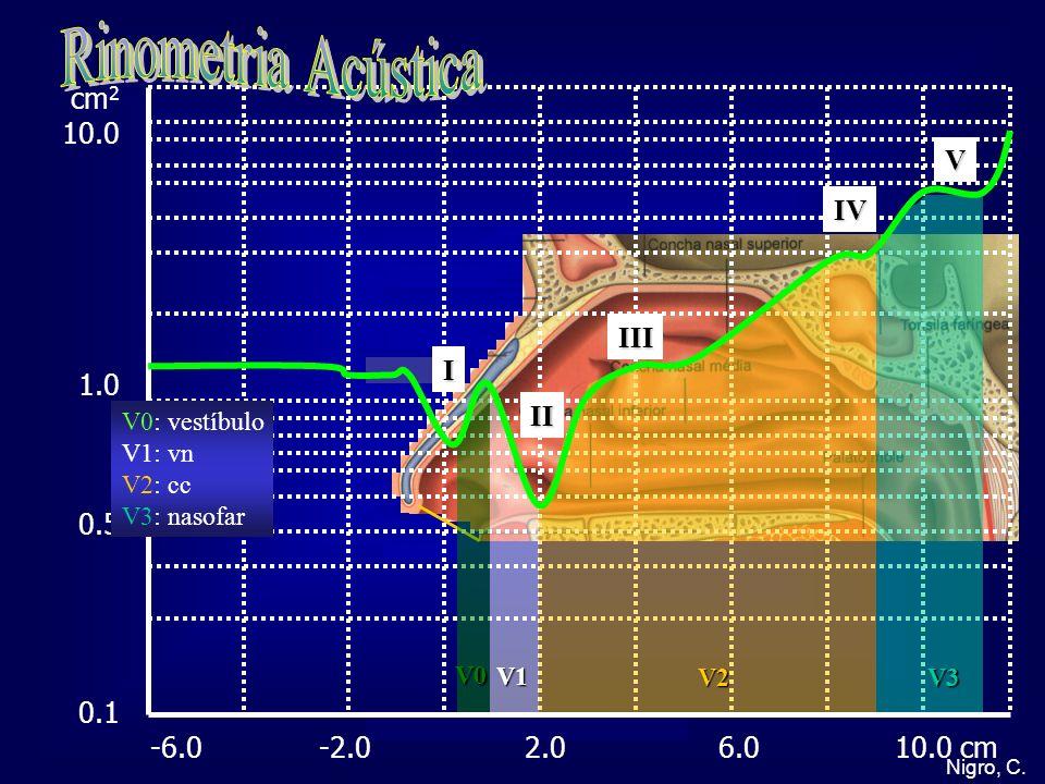 Nigro, C. cm 2 10.0 1.0 0.5 0.1 -6.0 -2.0 2.0 6.0 10.0 cm V0: vestíbulo V1: vn V2: cc V3: nasofar I II III IV V V0 V1 V2V3
