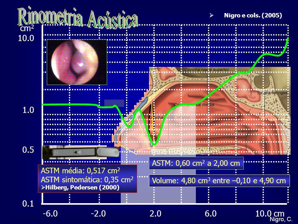 Nigro, C. cm 2 10.0 1.0 0.5 0.1 -6.0 -2.0 2.0 6.0 10.0 cm Nigro e cols. (2005) ASTM média: 0,517 cm 2 ASTM sintomática: 0,35 cm 2 Hilberg, Pedersen (2