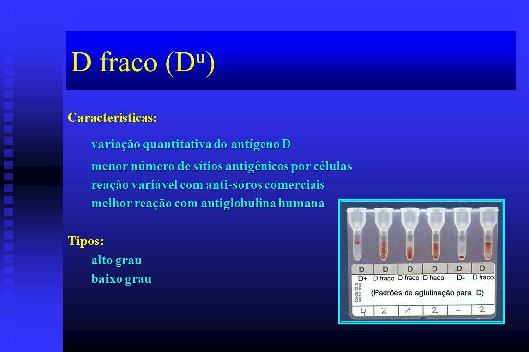 D fraco (D u ) Características: variação quantitativa do antígeno D menor número de sítios antigênicos por células reação variável com anti-soros come
