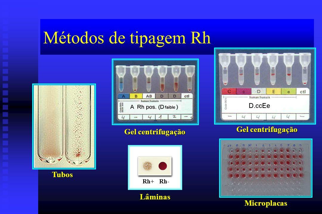 Métodos de tipagem Rh Lâminas Tubos Gel centrifugação Microplacas Rh+ Rh-