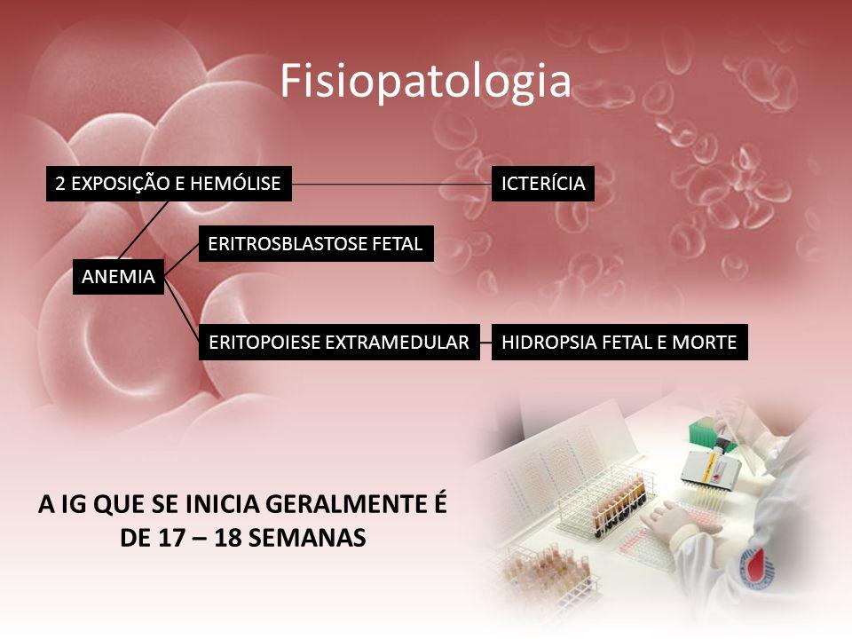 Fisiopatologia A IG QUE SE INICIA GERALMENTE É DE 17 – 18 SEMANAS 2 EXPOSIÇÃO E HEMÓLISE ANEMIA ERITROSBLASTOSE FETAL ERITOPOIESE EXTRAMEDULARHIDROPSI
