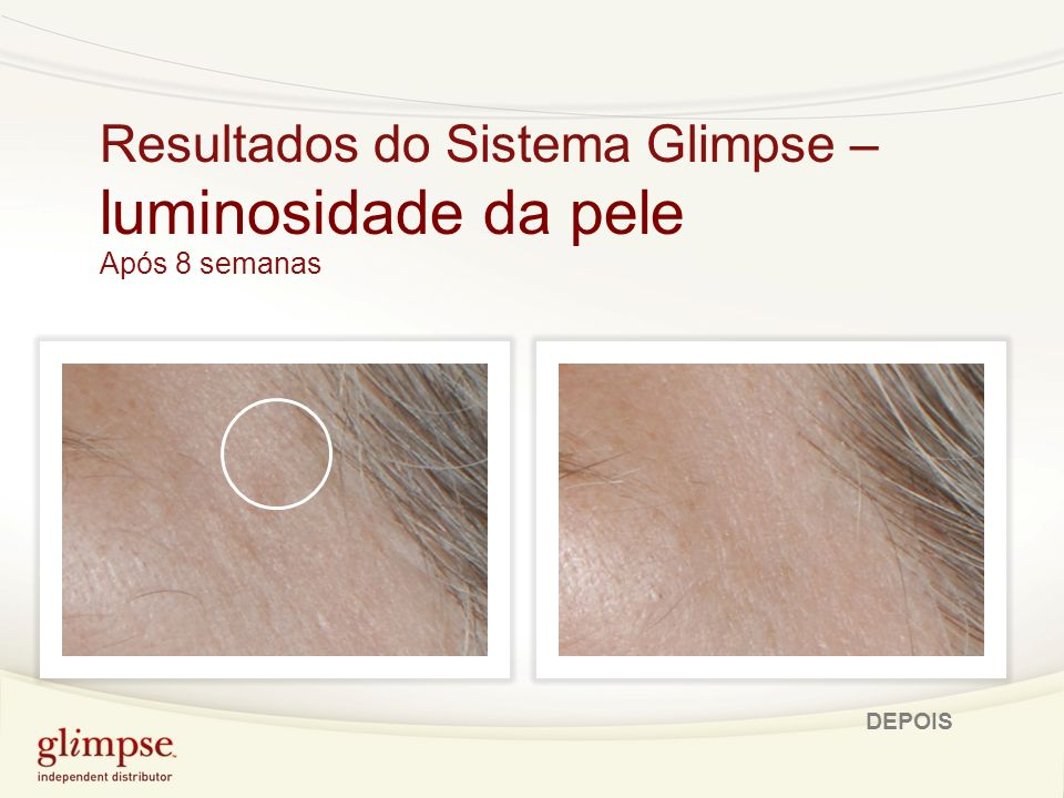 80% demonstraram uma diminuição no aparecimento de rugas e rídulas 90% demonstraram um aumento na hidratação da pele 100% declararam uma melhoria da luminosidade da pele Destaques: Resultados clínicos Glimpse