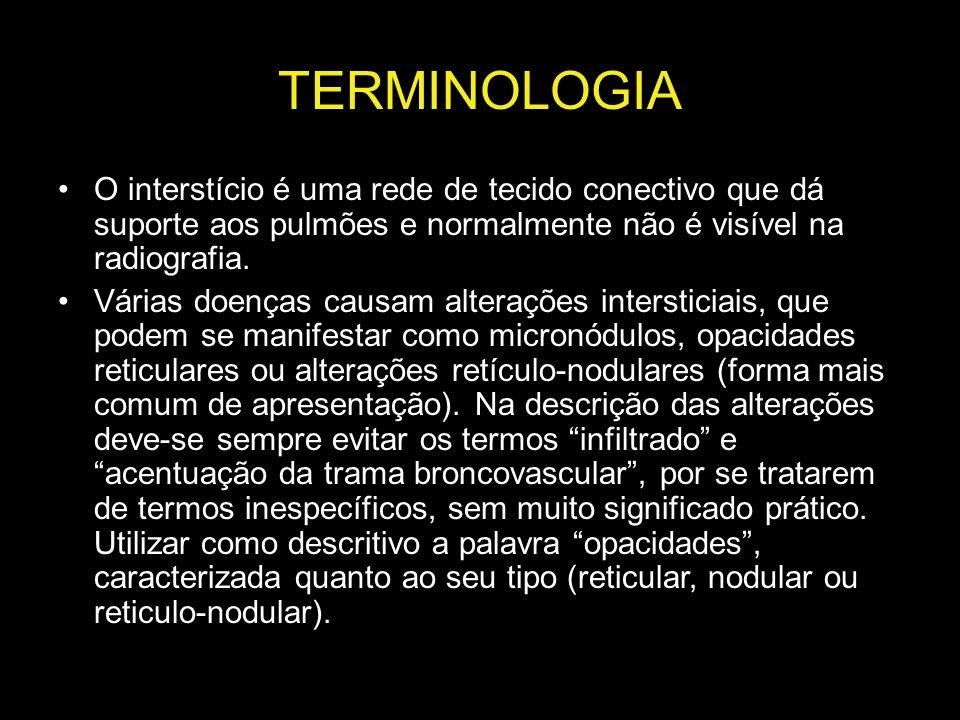 TERMINOLOGIA O interstício é uma rede de tecido conectivo que dá suporte aos pulmões e normalmente não é visível na radiografia. Várias doenças causam