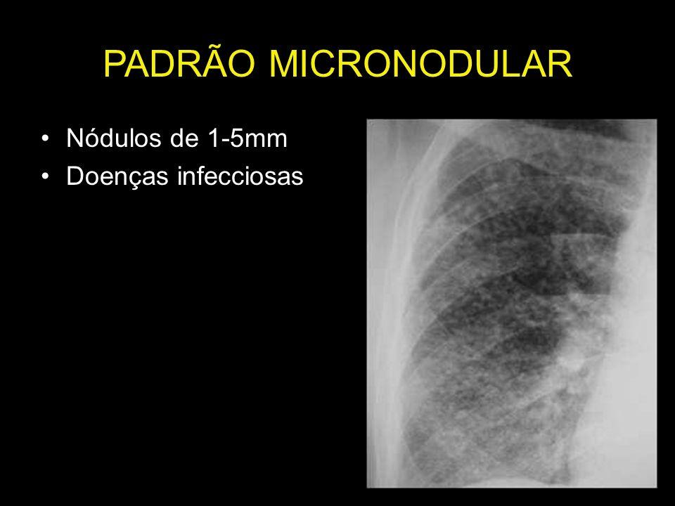 PADRÃO MICRONODULAR Nódulos de 1-5mm Doenças infecciosas