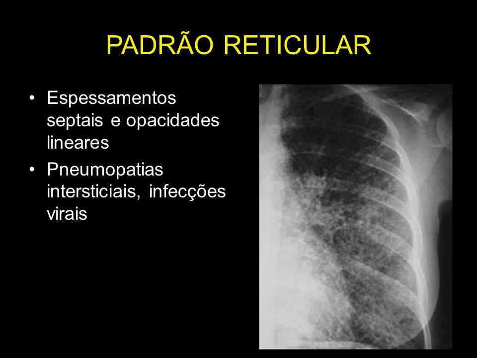 PADRÃO RETICULAR Espessamentos septais e opacidades lineares Pneumopatias intersticiais, infecções virais