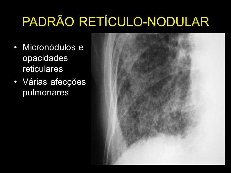PADRÃO RETÍCULO-NODULAR Micronódulos e opacidades reticulares Várias afecções pulmonares