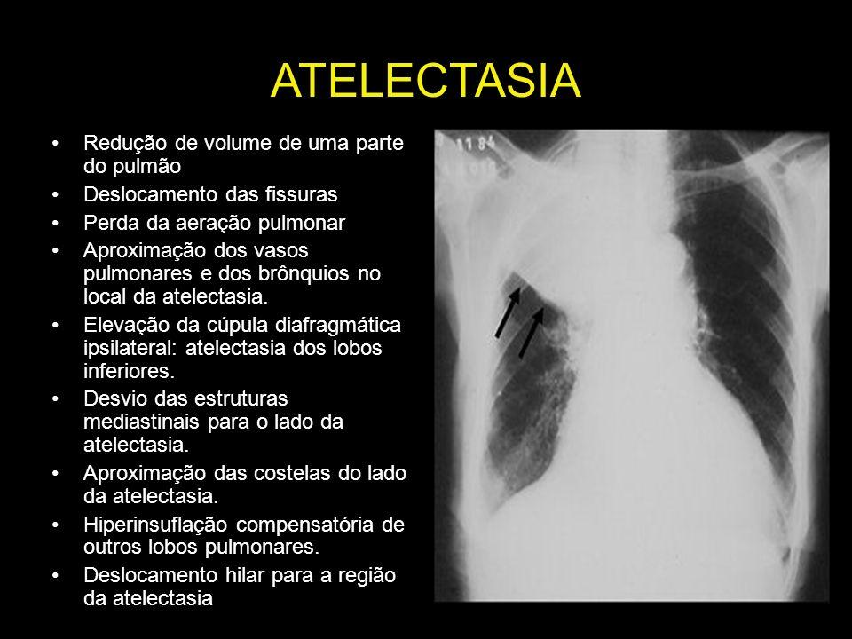 ATELECTASIA Redução de volume de uma parte do pulmão Deslocamento das fissuras Perda da aeração pulmonar Aproximação dos vasos pulmonares e dos brônqu
