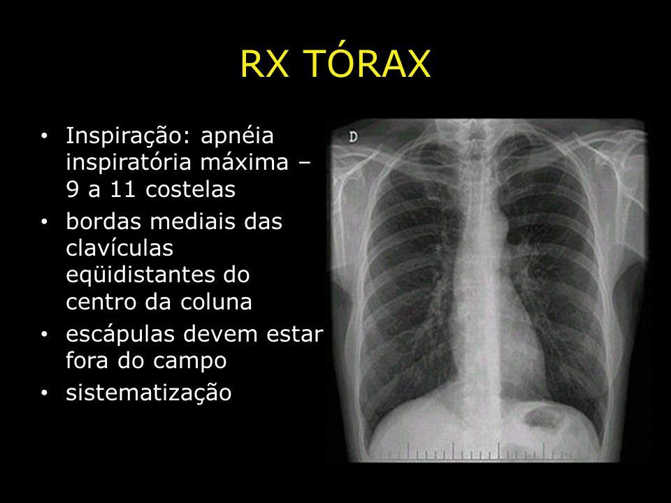 RX TÓRAX Inspiração: apnéia inspiratória máxima – 9 a 11 costelas bordas mediais das clavículas eqüidistantes do centro da coluna escápulas devem esta