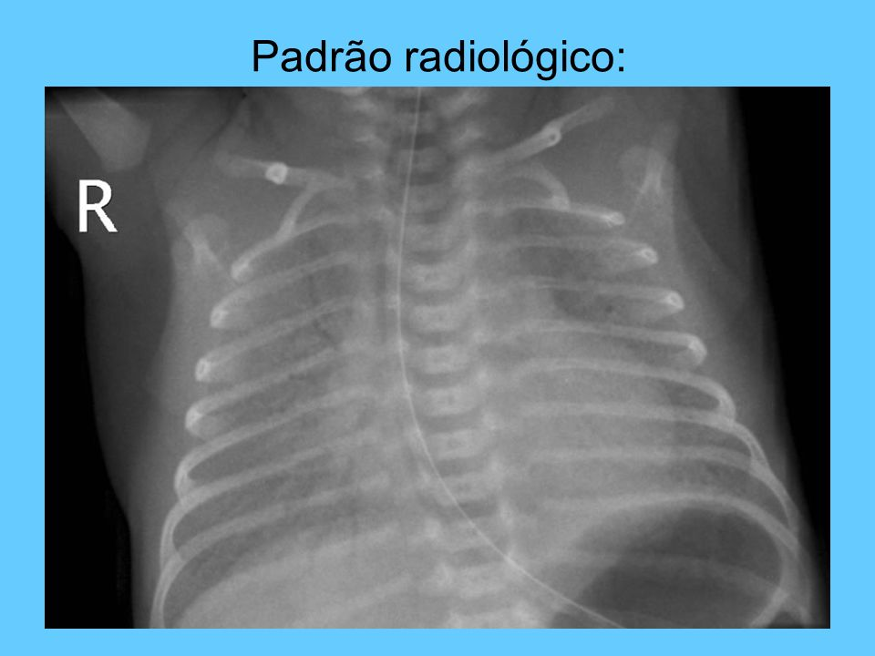 Padrão radiológico: